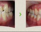 漳州矫正牙齿多少钱?