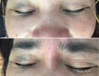 面部凹陷有哪些方法可以解决