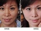 颜丽净祛斑产品是真的吗 可靠吗