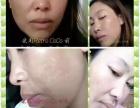 签约祛斑治疗合作加盟美容