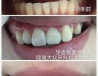 琼海牙科牙齿修复图
