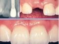 湛江珠江口腔医院:湛江牙科种植牙优惠活动