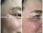 法国雾化祛斑去皱加盟 美容SPA/美发