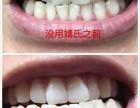 聚米婧氏草本牙膏孕妇可以用吗婧氏草本牙膏可以美白牙齿吗