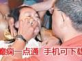 北京小孩癫痫病治疗方法 癫痫一点通APP