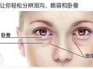 轻松学技术创业:一分钟袪眼袋