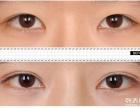 德州韩绣做开眼角手术会留疤吗什么样的眼睛适合开眼角