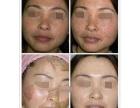 云浮发令纹全脸填充干细胞填充提升苹果肌哪有卖?