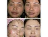 無錫中藥祛斑排毒面膜粉祛斑精油祛斑效果怎么樣?