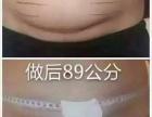 针灸减肥签约瘦20斤拔罐瘦身快速瘦肚子瘦腿副乳抽脂填充
