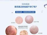 化妆品祛痘代加工OEM控油保湿淡化痘印祛痘凝胶祛粉刺祛痘膏