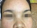 祛斑祛痘,疤痕修复,美容护肤养生泡澡,招商加盟代理