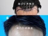 为什么大家都说千万别植发 还是那么多人植发呢