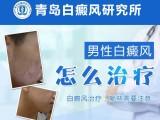 青岛白癜风研究所-白癜风不止遗传一种因素