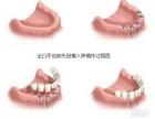 种植牙的使用年限