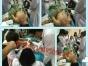 哪里有较的中医针灸培训考了中医针灸师证可以开店