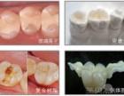 西安补牙的材料有哪些,补牙的流程图