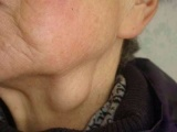 治疗淋巴结核的民间偏方有哪些 杨氏秘方有