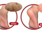 教你手裂脚裂后的护手护脚方法