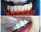 牙黄,牙缝大,牙洞怎么办?蚌埠小白牙让你一秒改善所问题!