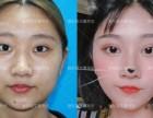 整形科普 双眼皮手术恢复期是多久呢