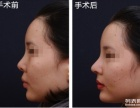 临沂假体隆鼻术后护理,临沂假体隆鼻整形术,临沂假体隆鼻方法