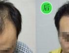 M型脱发怎么改善呢?