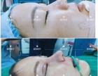 美致医疗美容达拉斯鼻综合术完胜传统鼻子整形获赞无数