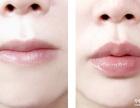 厚唇变薄是怎么样的呢?
