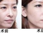祛眼袋有什么方法哪种方法做完后恢复期快,自然