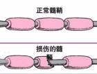 脱髓鞘哪个医院治得好,北京辰星中医说了算