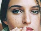色斑有哪些危害长色斑要怎么治疗呢