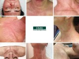 DMK黑頭小療加凈膚小療效果樣DMK