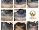 烟台洛神植发:植发手术真的那么安全靠谱吗