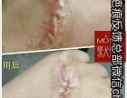 默默无纹修复霜骗局默默疤痕修复是假的还是真的
