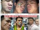 七老祛痘无痕精华液真的可以祛痘修复痘印吗?激素脸可以使用吗
