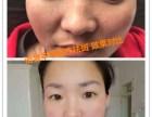 芜湖语馨祛斑祛痘