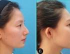 整形科普 隆鼻有哪些方法?