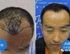 石家庄雍禾:脱发四大征兆,你中招了几条