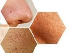 毛孔粗大导致的皮肤长痘粉刺怎么办