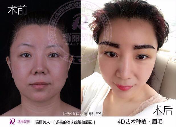 哈尔滨瑞丽植发中心能种植眉毛吗