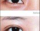天生肿眼泡应该怎样做双眼皮?德州韩绣帮您解决