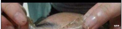 色素提取、液氮祛斑、冷冻祛斑、五天祛斑面膜专业祛痘