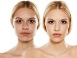 专业微整形培训学校如何学习鼻整形术