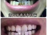 婧氏牙膏钱含氟还是不含氟