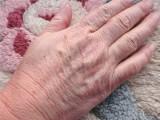 手总是裂口子的原因和预防措施