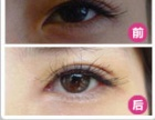 德州哪家做双眼皮开眼角做得好双眼皮开眼角术后会有增生吗
