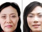 玉林ST红光紧肤除皱术的效果如何?