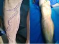 诱发静脉炎的常见原因 你注意了吗 大庆普济中医医院