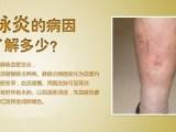 血栓性深下肢靜脈炎早期表現患肢腫脹